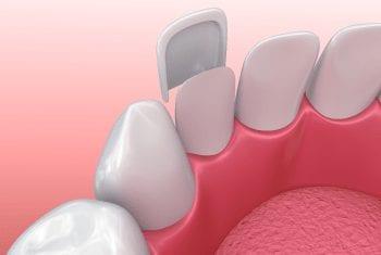 Dental Veneer & Lumineers