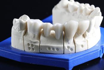 牙冠与牙桥