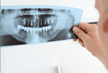 牙科 X 光