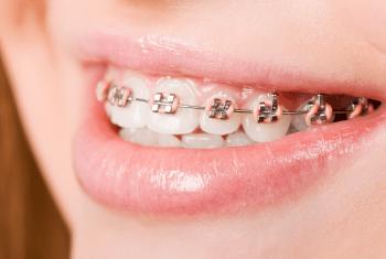 Rawatan Ortodontik
