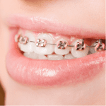 Orthodontic Quick Access